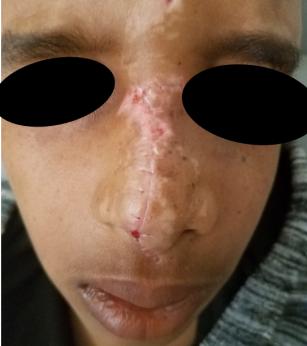 nose injury- week post op 1