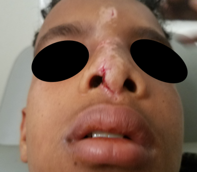 nose injury- week post op 2